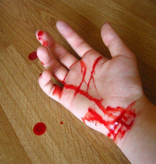 порез вен фото на руке