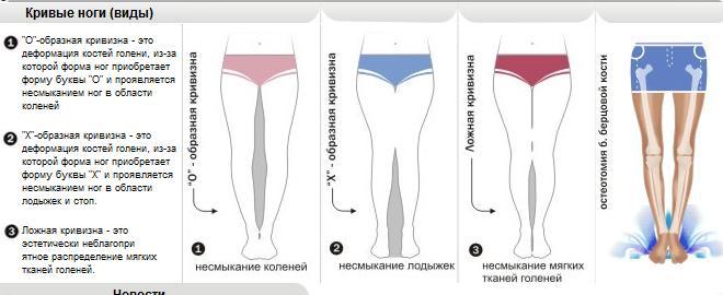 Как сделать ноги красивыми и прямыми