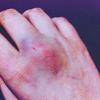 В жопу раненая Рысь