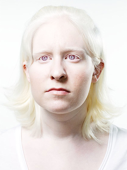 Treated or near-normal coloration albinism itself does everyone