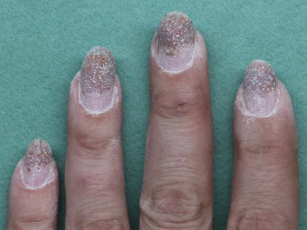 Как выглядит царапина от ногтей фото