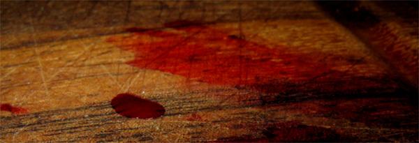 452Порезала губу как остановить кровь