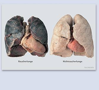 Легкие курильщика и здорового человека, стоит ли оно того?